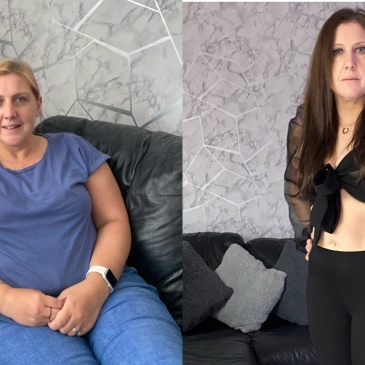 Exante Diet Before And After Pictures